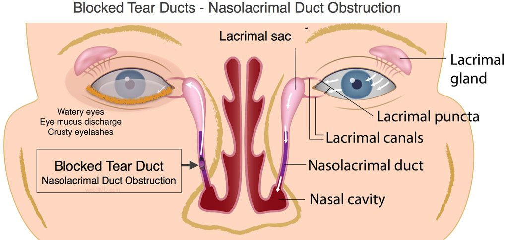Blocked Tear Ducts