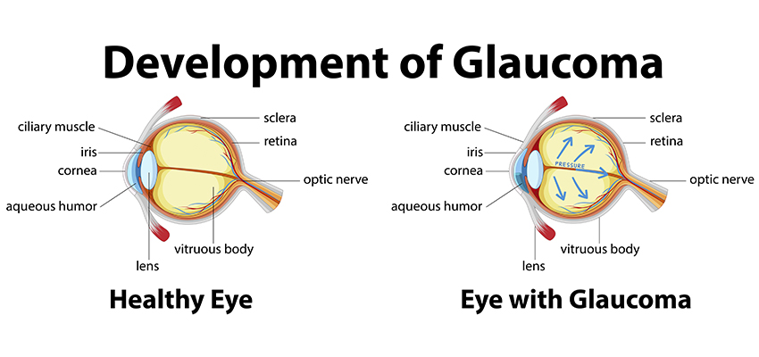 about Glaucoma